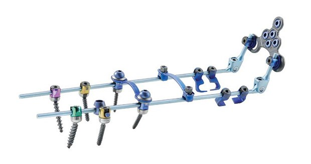 Zimmer launches the Virage OCT spinal fixation system
