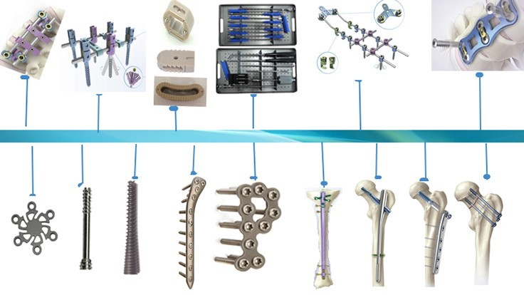 Top 4 Orthopedic Medical Device Market Trends Today S