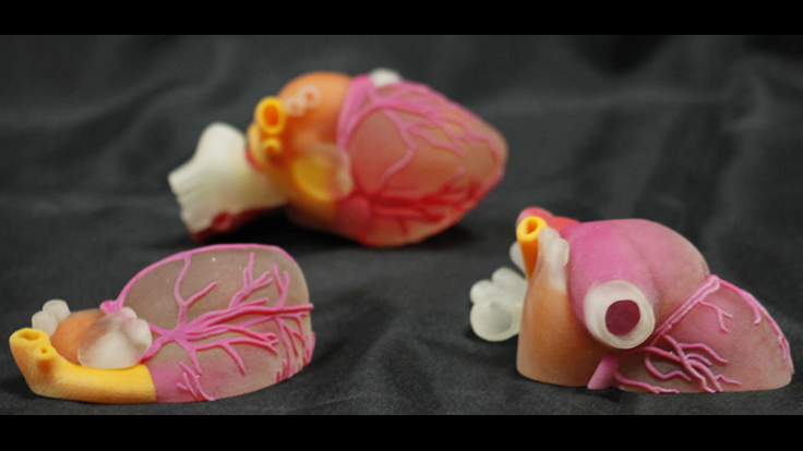 3D printed medical devices market's strong growth