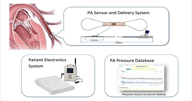 Measuring the pulmonary artery (PA) pressures