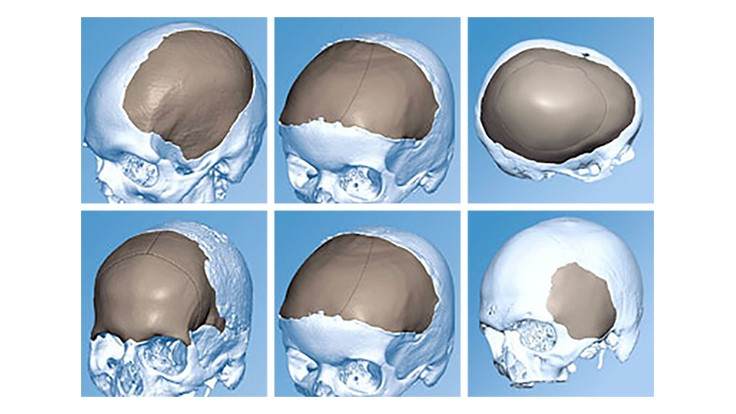 DePuy Synthes, Materialise, 3D-printed titanium cranio-facial implants