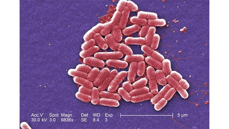 University Researchers Develop Rapid Nanosensor for E. coli