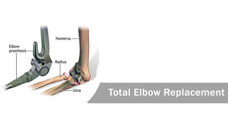 Standard to test, improve elbow prostheses