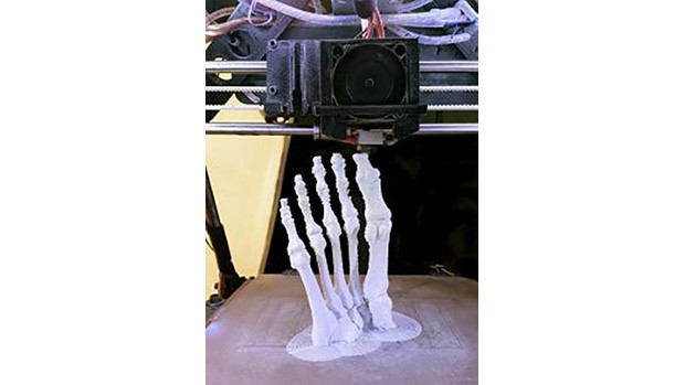 3D printing personalized medical devices