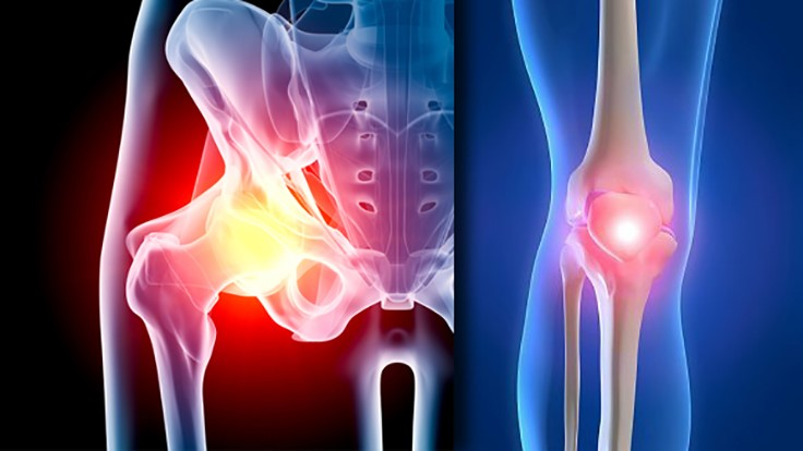 Hip, knee orthopedic surgical implants market to $33B by 2022