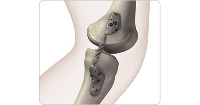 Implantable Knee Spring Successfully Reduces Pain