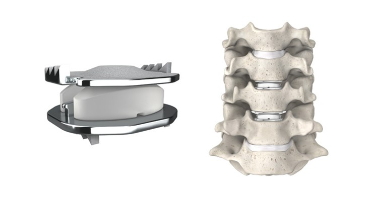 Drivers, players in artificial disc replacement market
