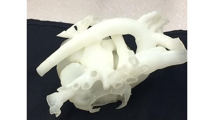 3D printed heart models supported by Stratasys
