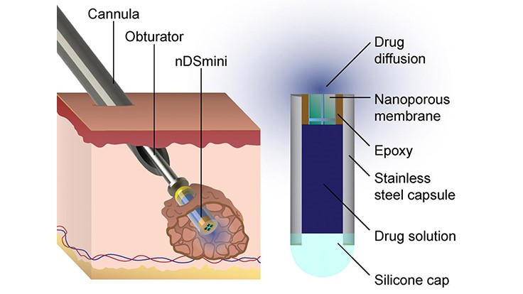 Minimally invasive device to treat cancer, other illnesses