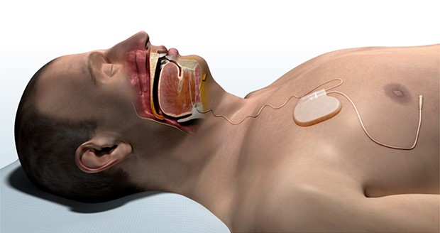 FDA-approved fully implanted neurostimulation device