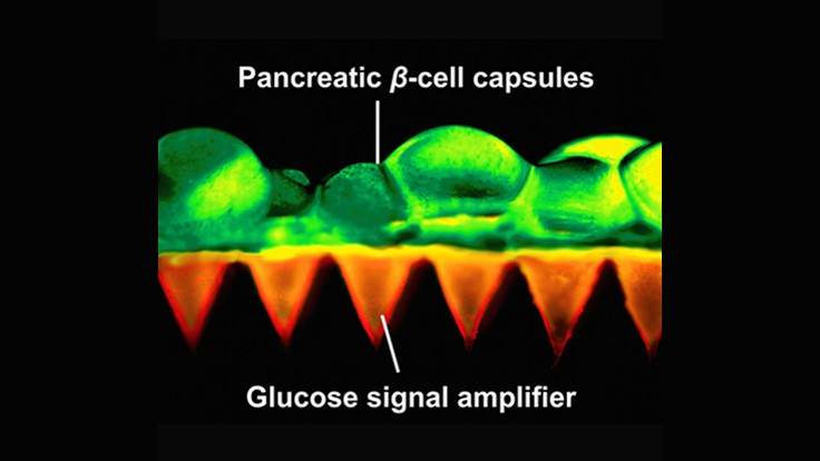 Painless patch, insulin-producing beta cells control diabetes