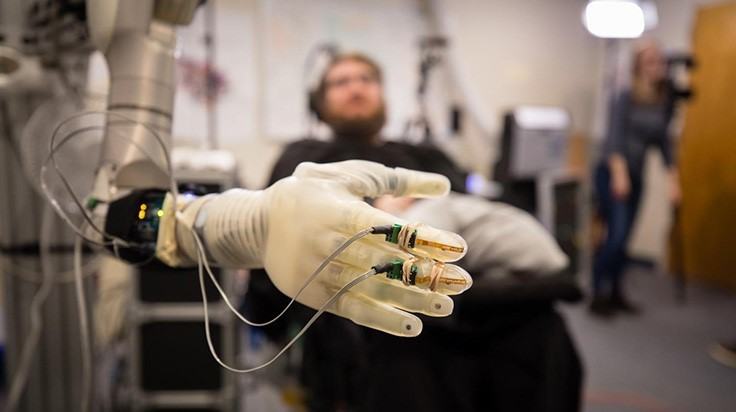 UChicago receives $3.4M NIH grant to develop brain-controlled prosthetic limbs
