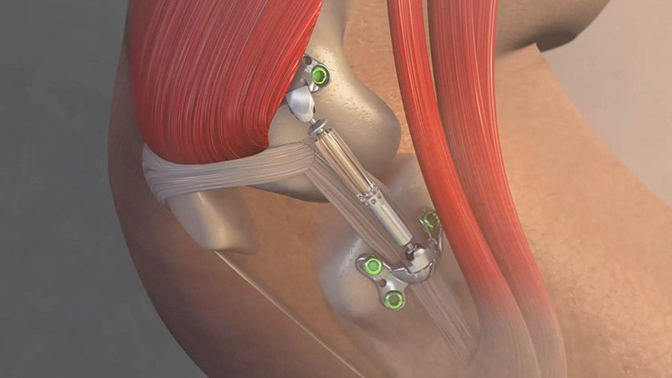 Medical device to prevent, delay knee replacements (Video)
