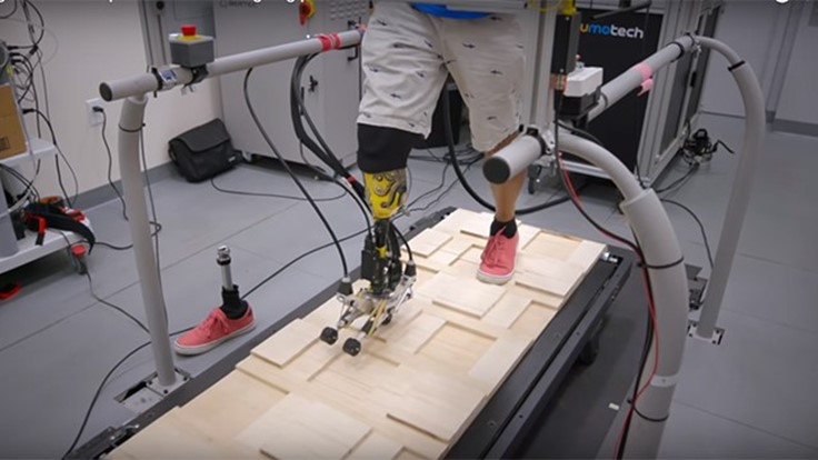 Tool for designing prosthetic limbs (Video)