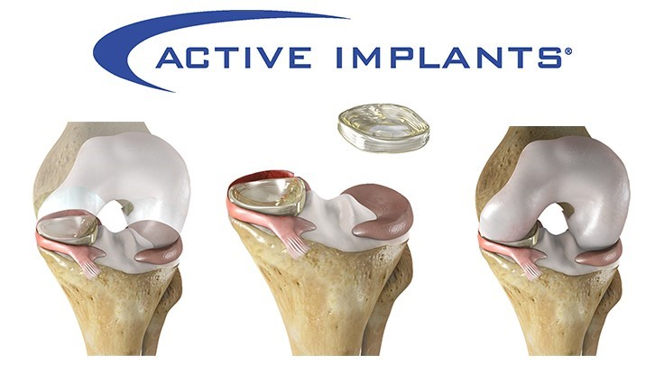 Breakthrough Device Designation for NUsurface meniscus implant