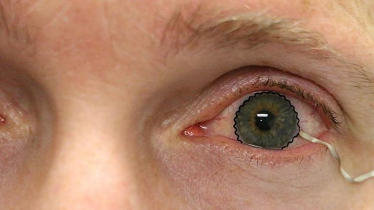 Soft contact lenses eyed to monitor ocular disease