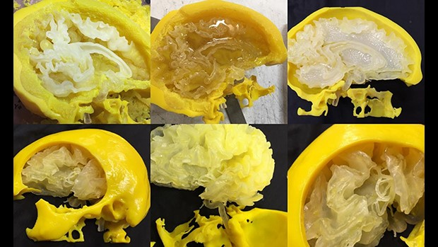 Surgical simulation on 3D printed brains improves outcomes