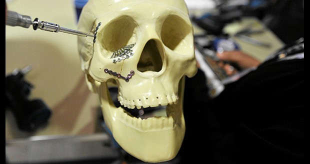 Craniomaxillofacial devices to exceed $1.2B by 2020