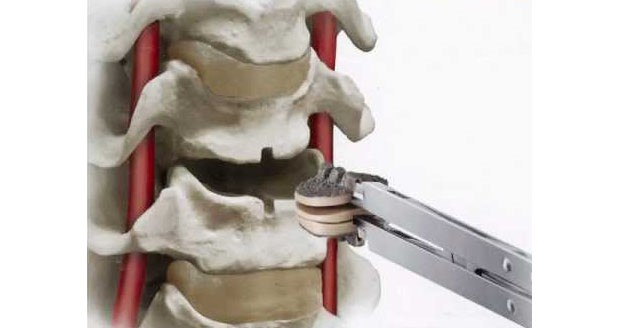 DePuy Synthes Spine cervical artificial discs - Today's