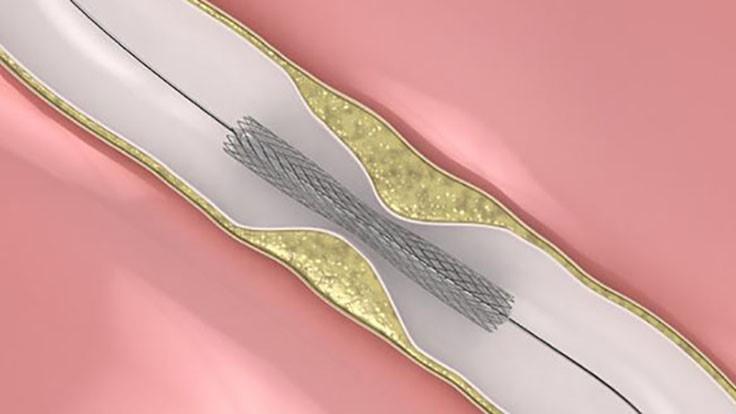 Regulatory, clinical factors limiting US non-vascular stent market growth